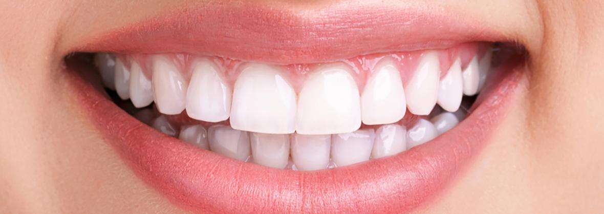 Zahnarzt, strahlende Zähne